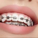 Quais são os tipos de aparelho dental?